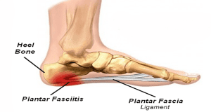 Plantar Fasciitis: What you need to know:
